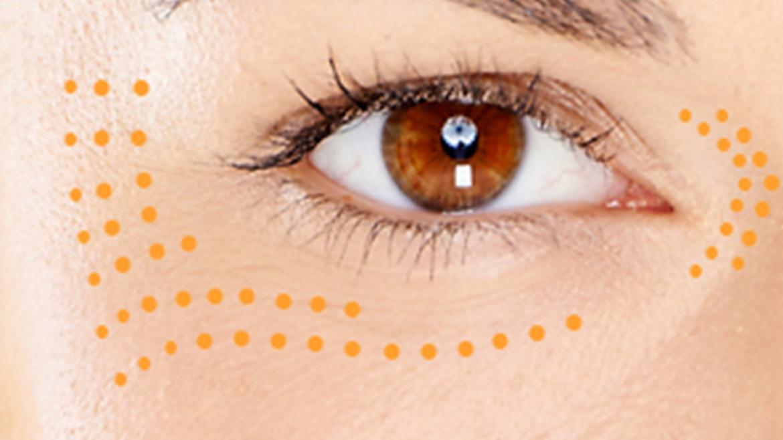 Αναδόμηση ματιών