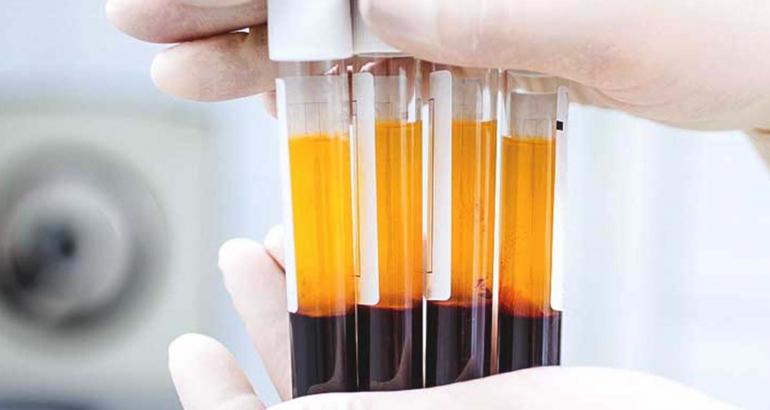 Μικροεγχύσεις με πλάσμα πλούσιο σε αιμοπετάλια